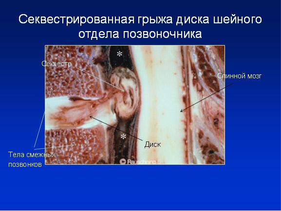 Боль в спине вверху позвоночника