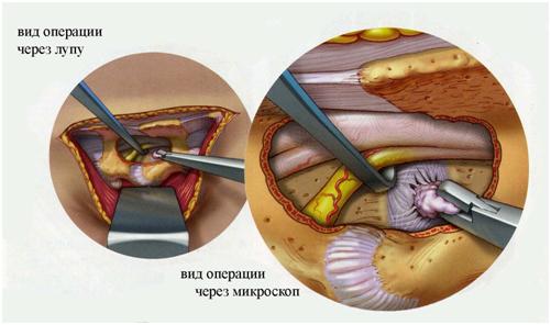 Биопсия печени результат анализа